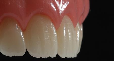 diş hekimi serkan zeybek denizli implant ortodonti estetik diş kompozit dolgu / estetik dolgu