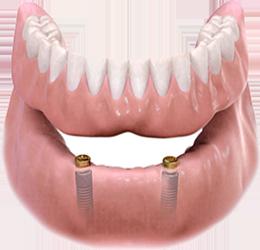 diş hekimi serkan zeybek denizli implant ortodonti estetik diş